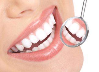 fogszabályzóval a rendezett fogakért